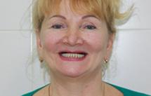 Особенности имплантации передних верхних зубов