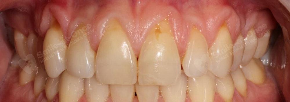 зубы выглядят длинее при рецессии