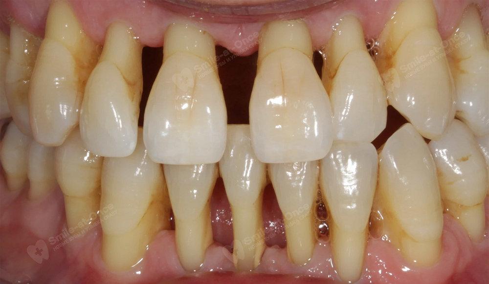 Пародонтоз может привести к потере всех зубов