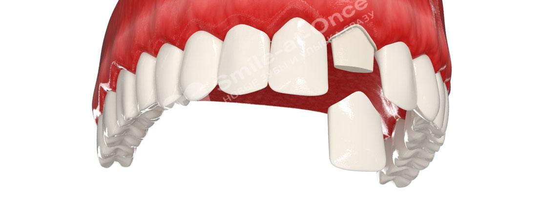 Керамическая коронка на передний зуб
