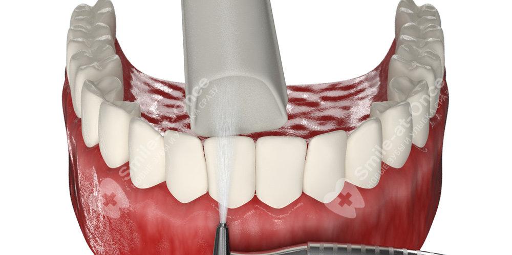 Процедура проведения чистки зубов Air Flow