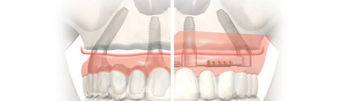 все зубы за один день