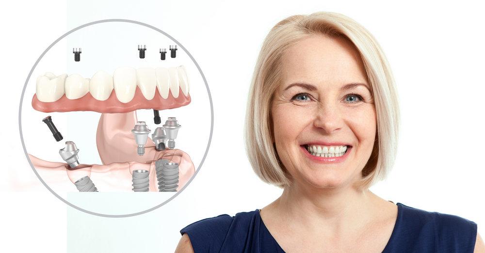 имплантация зубов кому за 50