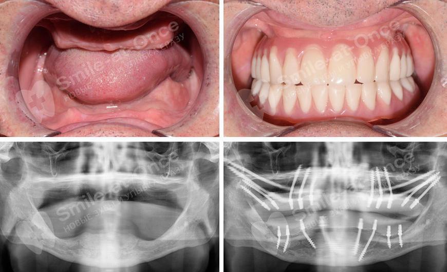 одноэтапная имлантация для восстановления зубов
