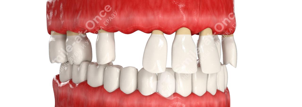 возможна ли имплантация зубов при пародонтозе