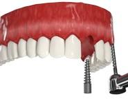 имплантация с отстроченой нагрузкой переднего зуба