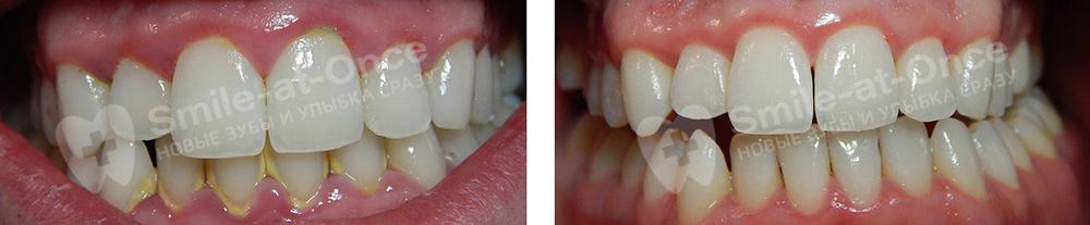 Пример проведения гигиенической чистки зубов