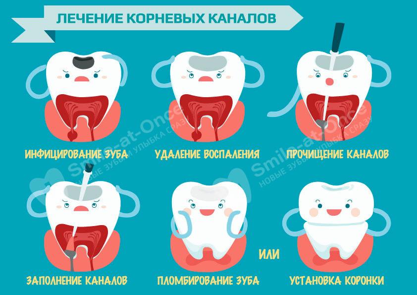 Инфографика по лечению кариеса