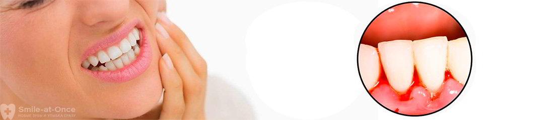 Чем лечить язвы на деснах от протезов