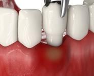 Лечение флюса с удалением зуба
