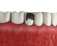 Художественное наращивание треснутого зуба
