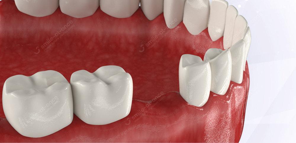 имплантация 3 зубов сразу