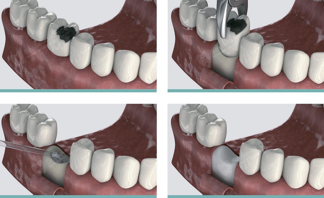 Подскадка костной ткани после удаления зуба