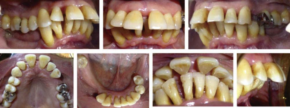 Подвижность зубов как следствие пародонтита