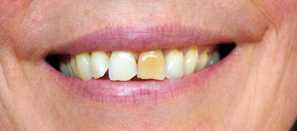причины потемнения одного зуба