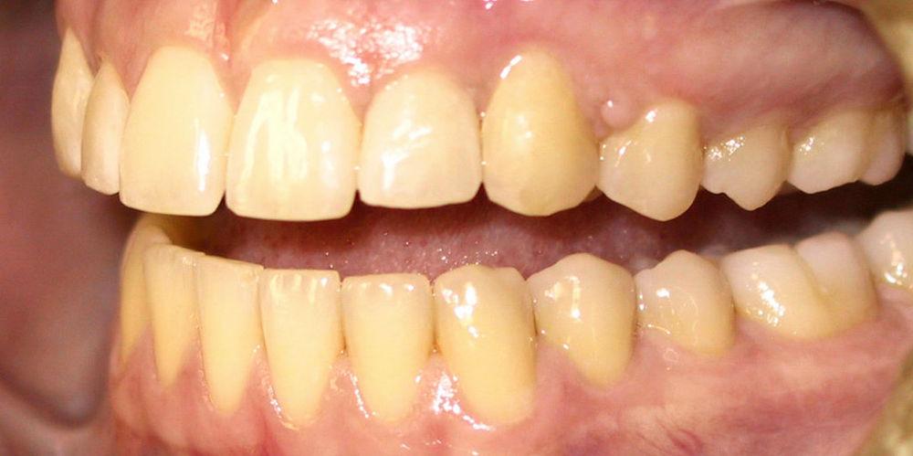 пожелтение зубов
