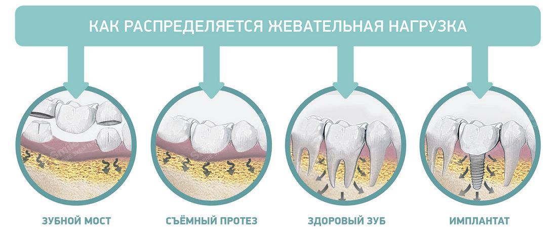 Распределение нагрузки на зубы