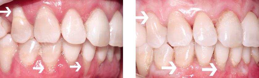 результат лечения smile recovery
