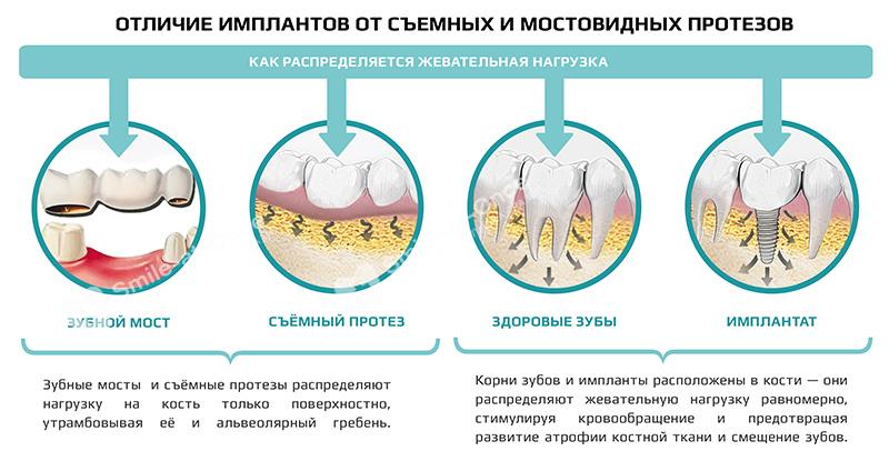 Лоскутные операции при пародонтите: степени хирургического лечения, методы подсадки костной ткани, восстановление десен, брекеты