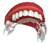 Съемный протез для жевательных зубов