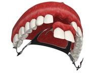 Съемный протез на передние зубы