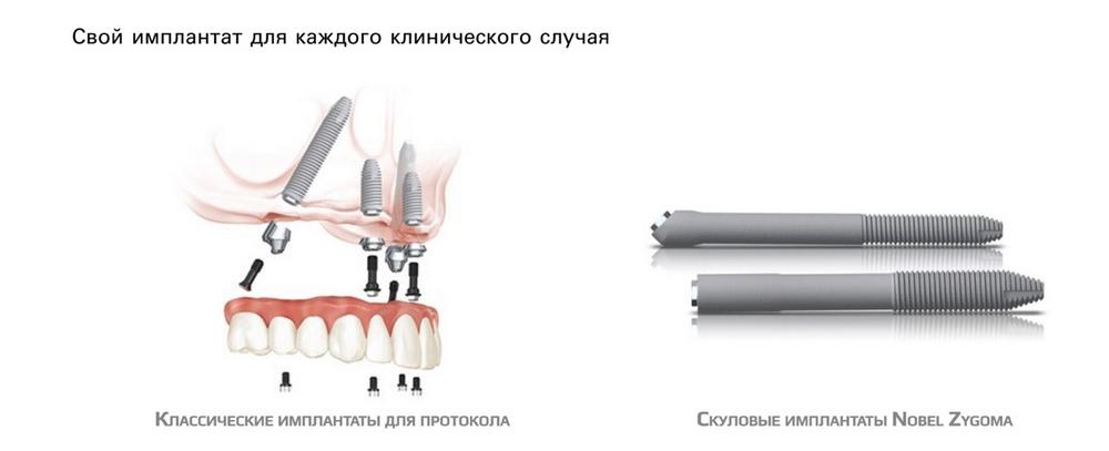 Разные импланты для разных клинических случаев