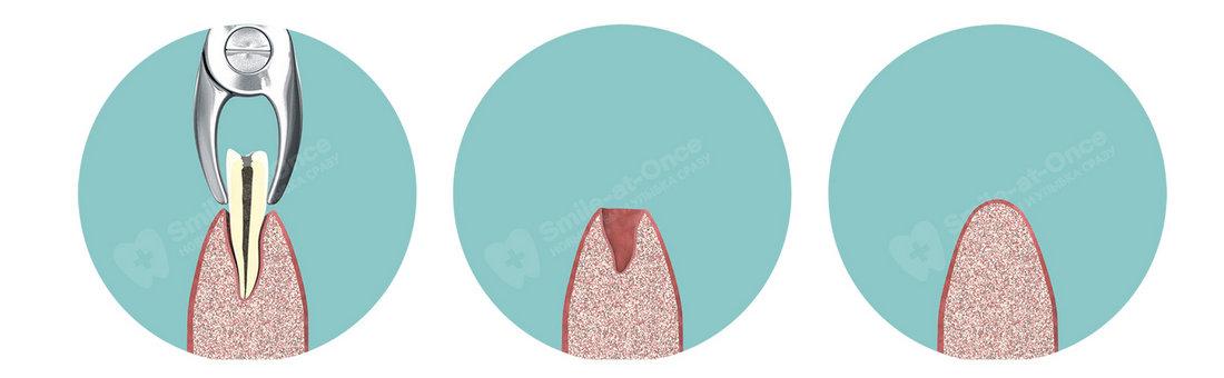 Удаление зуба и заживление лунки