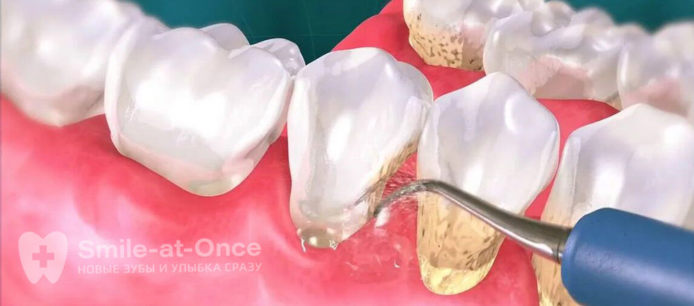 Процесс удаления налета с зубов