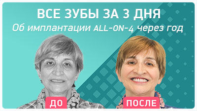 Через 1 год после имплантации all-on-4 Nobel Biocare