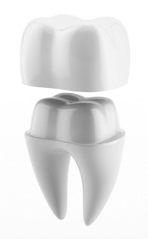 Внешний вид зубной коронки