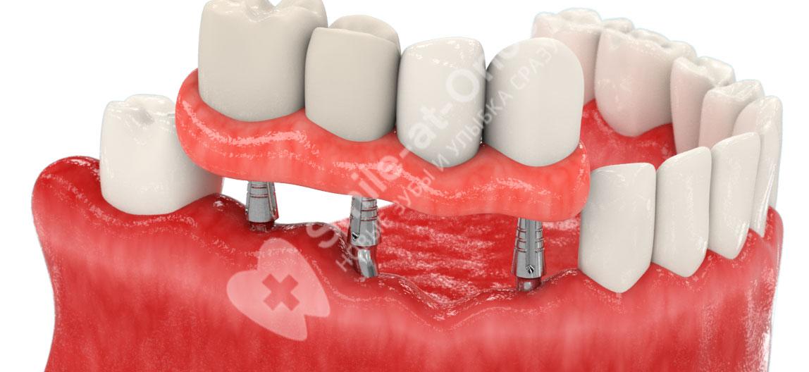 имплантация зубов при отсутствии зубов на нижней челюсти