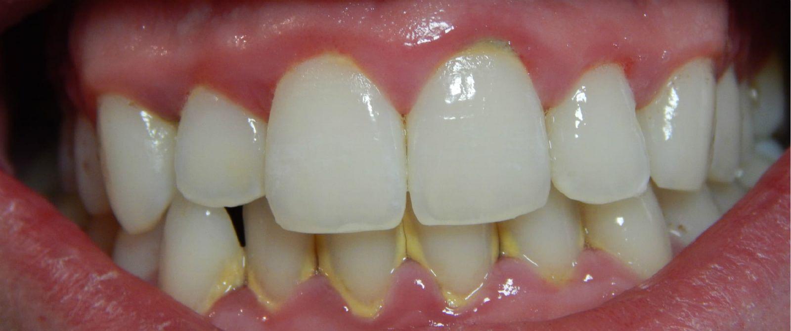 запах изо рта причины лечение народными средствами