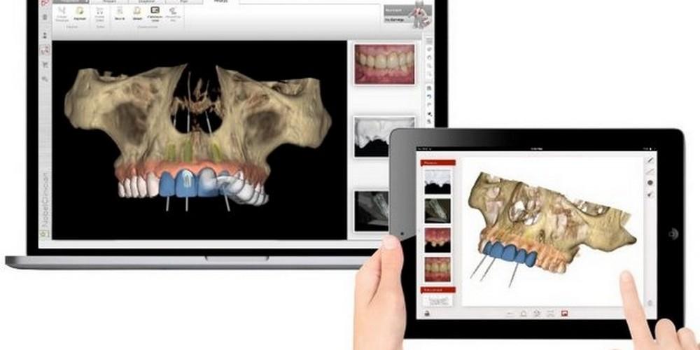 3D моделирование имплантации