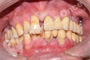 Комплексная имплантация зубов