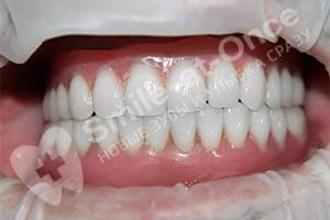 Полное восстановление зубов базальными имплантами