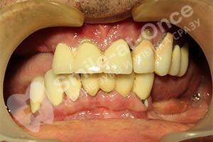 Проведение имплантации для восстановления зубов
