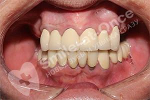 Однофазная имплантация зубов верхней челюсти