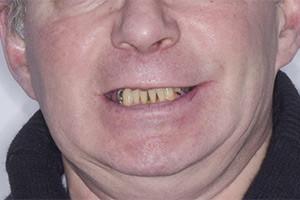 Базальная имплантация фото до