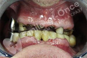 Имплантация BASAL COMPLEX на верхней челюсти