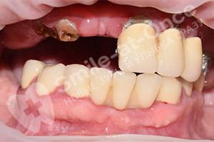 Имплантация и протезирование зубов (Однофазная)