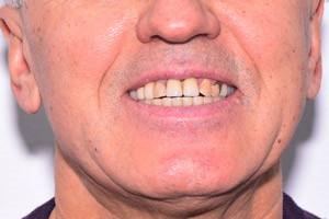 Все-на-4 для верхней челюсти после Basal Complex нижней, фото до
