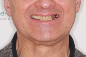 Все-на-4 и COMBO для создания новой улыбки, фото до