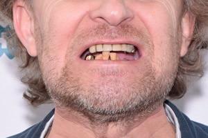 Протезирование All-on-4. Импланты Zygoma для верхней челюсти, фото до