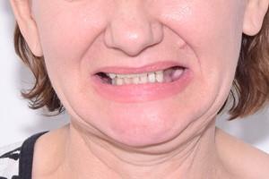 All-on-4 с двумя имплантами Zygoma для восстановления зубов на верхней челюсти, фото до