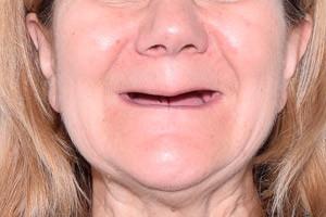 Nobel Zygoma для восстановления зубов на верхней челюсти, фото до