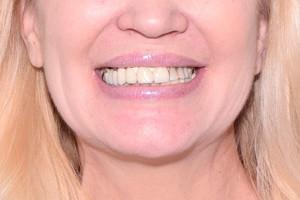 Скуловые импланты Nobel Zygoma в помощь новым зубам, фото до