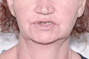 Все-на-4 от Nobel, скуловые импланты для верхней челюсти , фото до