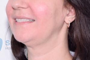 Новые зубы для пациентки из Тюмени, фото до