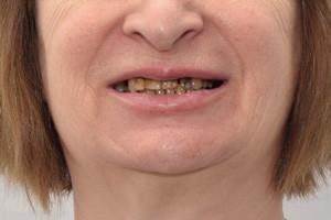 All-on-4 для новых зубов. Nobel Zygoma для верхней челюсти, фото до
