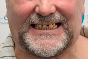 Комплексаня имплантация зубов с имплантами Zygoma, фото до